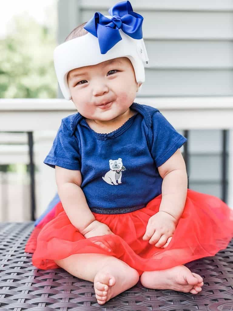 adding bow to cranial helmet example on baby with blue bow